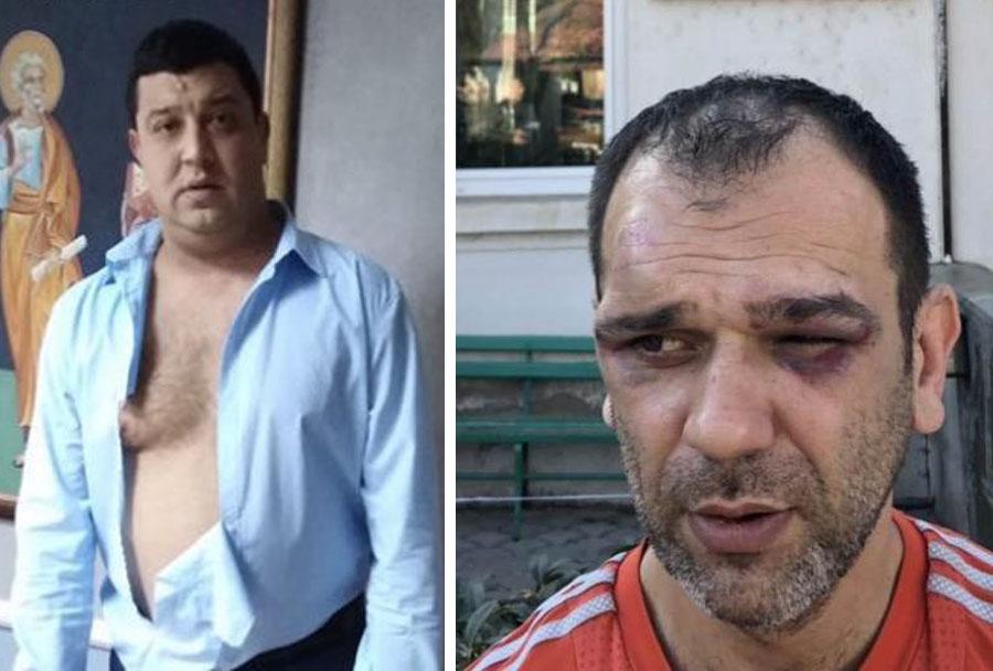 U Prokuplju danas protestno okupljanje: Pustiti iz pritvora žrtvu prebijanja od strane predsednika opštine Žitorađa